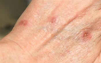 bazal hücreli cilt kanseri