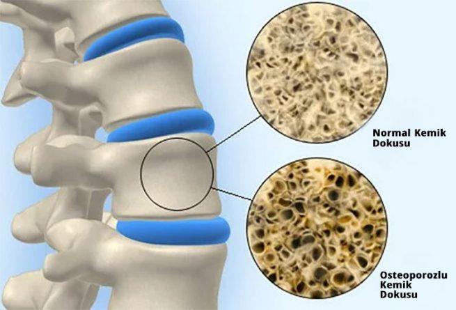 osteoporozlu kemik dokusu